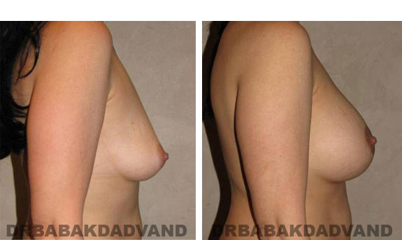 Before & After Photos. Breast-Augmentation:  - Woman, right side view