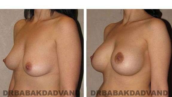 Before & After Photos. Breast-Augmentation:  - Woman, left side, oblique view
