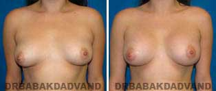 Breast Augmentation. Before and After Photos. 27 year old woman - front view