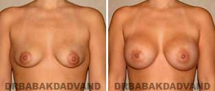 Breast Augmentation. Before & After Photos. 32 year old woman - front view
