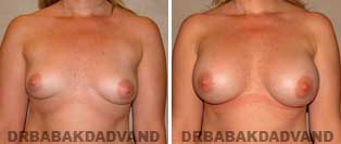 Breast Augmentation. Before and After Photos. 31 year old woman - front view
