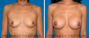 Breast Augmentation. Before & After Photos. 26 year old woman frontal view