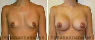 Breast Augmentation. Before & After Photos. 20 year old female frontal view