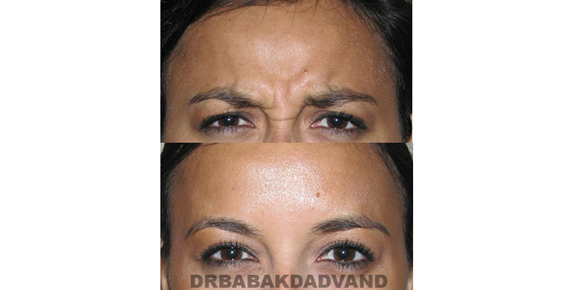 Before - After Photos |Botox| female - front view