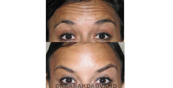 Before - After Photos |Botox| woman - front view