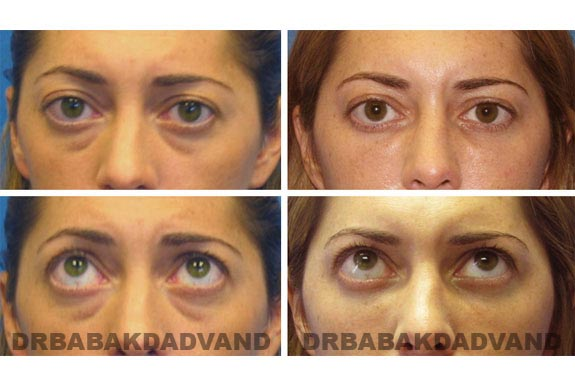 Before - After Photos |Eyelid| 34 year old female, - front view