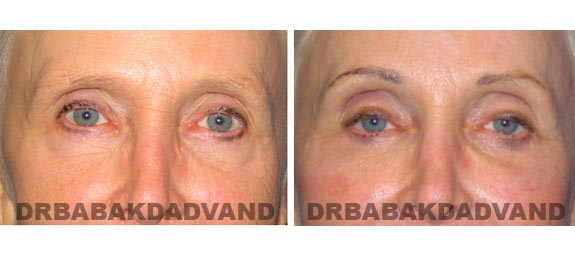 Before - After Photos |Eyelid| 67 year old female, - front view