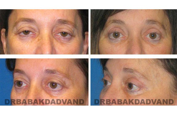 Before - After Photos |Eyelid| 56 year old female, - front view; left side, oblique view