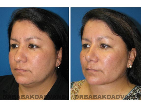 Before - After Photos |Necklift| 42 year old female, - left side,oblique view