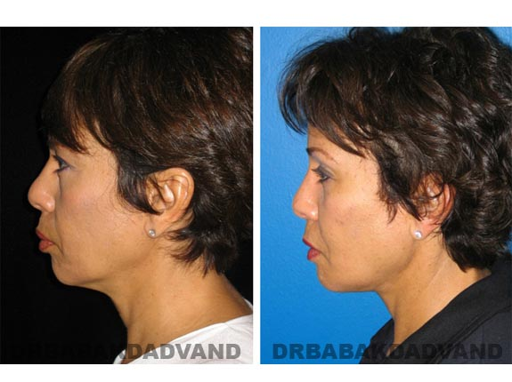Before - After Photos |Necklift| 55 year old female, - left side view