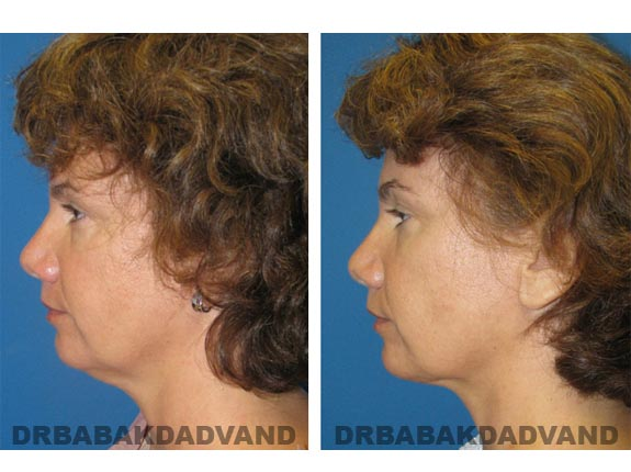 Before - After Photos |Necklift| 42 year old female, - left side view