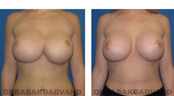 Before and After Photos |Revision Breast| - 23 year old female, - front view