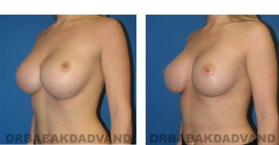 Before and After Photos |Revision Breast| - 23 year old female, - left side, oblique view