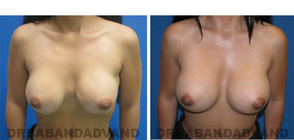 Before and After Photos |Revision Breast| - 37 year old female, - front view (inclined forward)