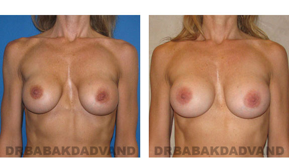 Before and After Photos |Revision Breast| - 46 year old female, - front view