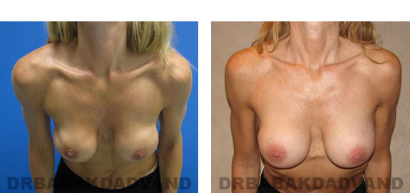 Before and After Photos |Revision Breast| - 46 year old female, - front view (inclined forward)
