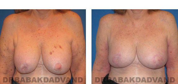 Before and After Photos |Revision Breast| 67 year old female, - front view
