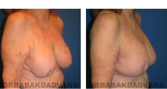 Before and After Photos |Revision Breast| 67 year old female, - right side, oblique view