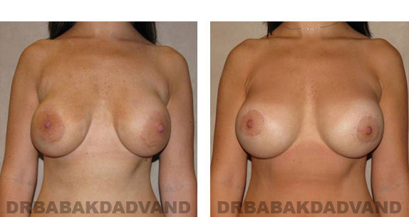 Before and After Photos |Revision Breast| - 32 year old female, - front view
