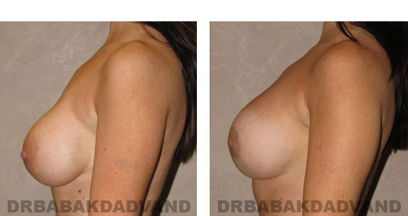 Before and After Photos |Revision Breast| - 32 year old female, - left side view