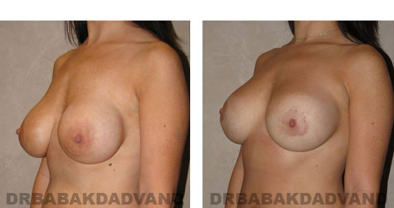 Before and After Photos |Revision Breast| - 32 year old female, - left side, oblique view