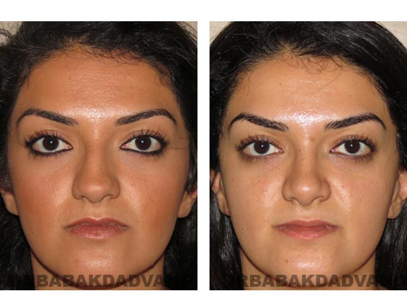 Before - After Photos |Rhinoplasty| 22 year old female, - front view