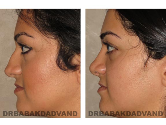 Before - After Photos |Rhinoplasty| 22 year old female, - left side view