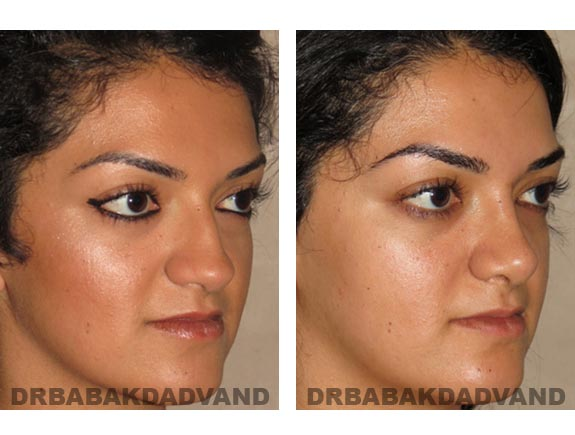 Before - After Photos |Rhinoplasty| 22 year old female, - right side,oblique view