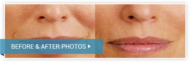 Juvederm. Before and After photos female front view