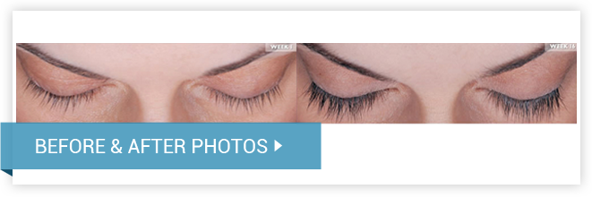 LATISSE™ Eyelash Enhancer. Before and After photos female front view
