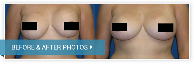 Revision Breast Surgery. Before and After photos - female front view