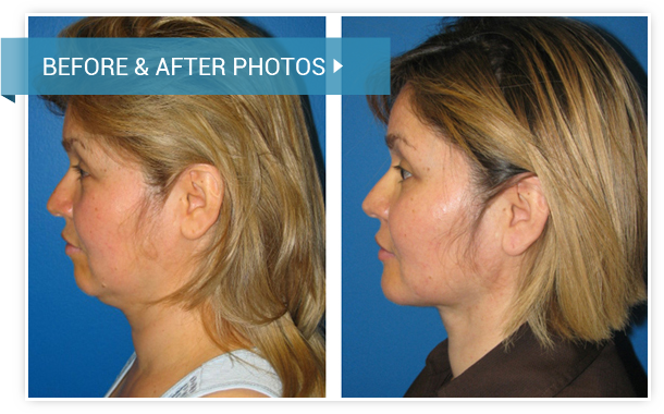 Necklifts. Before and After photos female left side view