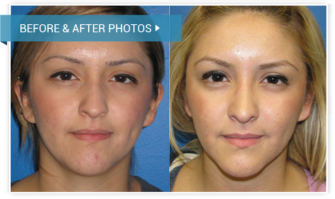 Rhinoplasty (Nose Surgery). Before and After photos female front view