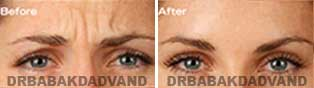 Non Surgical Before & After Photos: BOTOX