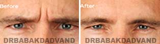 Botox: Before and After Photos male front view