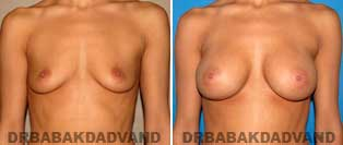 Breast Augmentation. Before & After Photos. 40 year old female frontal view