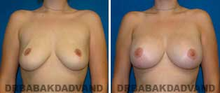Breast Lift. Before and After Photos. 24 year old woman - front view