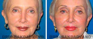 Browlift: Before and After Photos - 67 year old female, front view