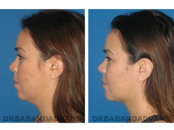 Before - After Photos |Chin Augmentation| female, left side view