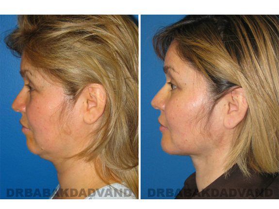Before - After Photos |Chin Augmentation| woman, left side view