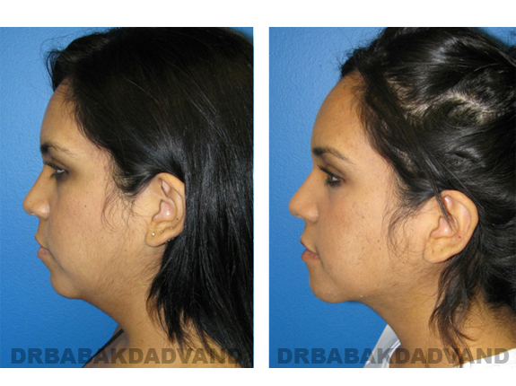 Before and After Photos |Chin Augmentation| woman, left side view