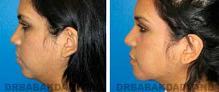 Chin Augmentation: Before and After Photos - woman, left side view