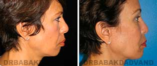Chin Augmentation: Before and After Photos - woman, right side view