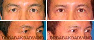 Eyelid: Before and After Photos - 57 year old male, front view (oblique view)