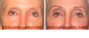 Eyelid: Before and After Photos - 67 year old female, front view