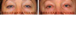 Eyelid: Before and After Photos - 56 year old female, front view