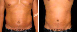 Liposuction: Before and After Photos - 32 year old male - front view