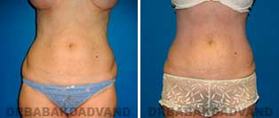 Liposuction: Before and After Photos - 47 year old female - front view