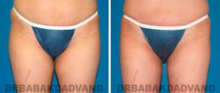 Liposuction: Before and After Photos - 34 year old female - front view