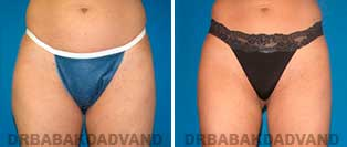 Liposuction: Before and After Photos - 32 year old female - front view